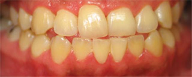 Hydrogen peroxide in dentistry | Registered Dental Hygienist