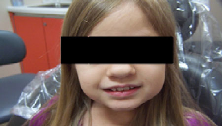 Achondroplasia: Oral health concerns associated with genetic disorder  commonly referred to as dwarfism | Registered Dental Hygienist (RDH)  Magazine