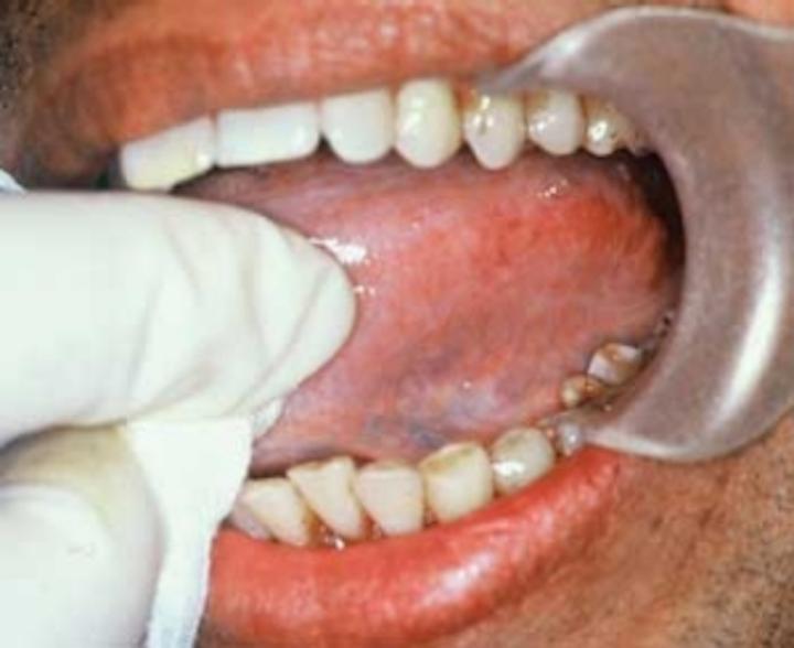 Areca nut and betel quid use   Registered Dental Hygienist