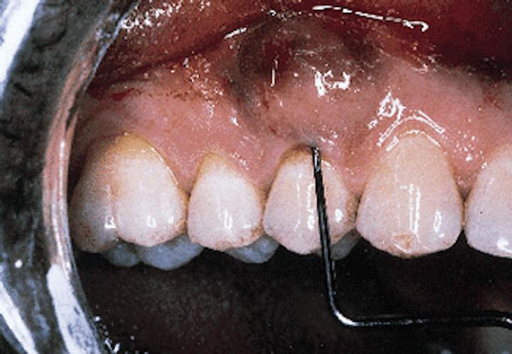 Periodontal Regeneration Registered Dental Hygienist Rdh Magazine