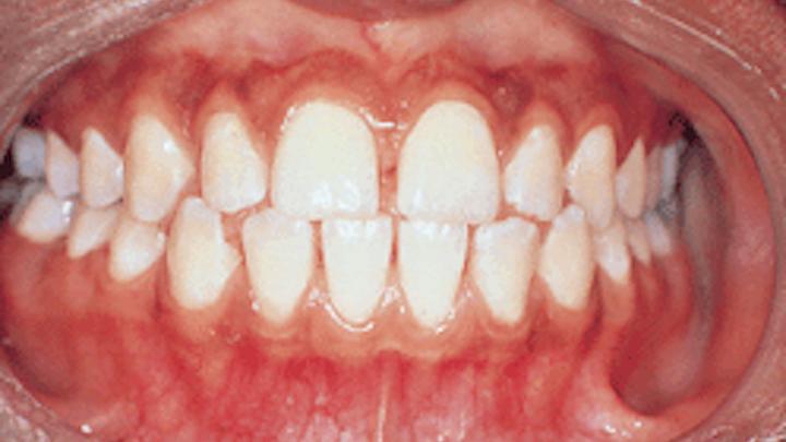 Localized Juvenile Periodontitis | Registered Dental Hygienist