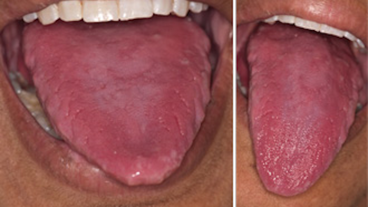 sore cracked tongue during pregnancy