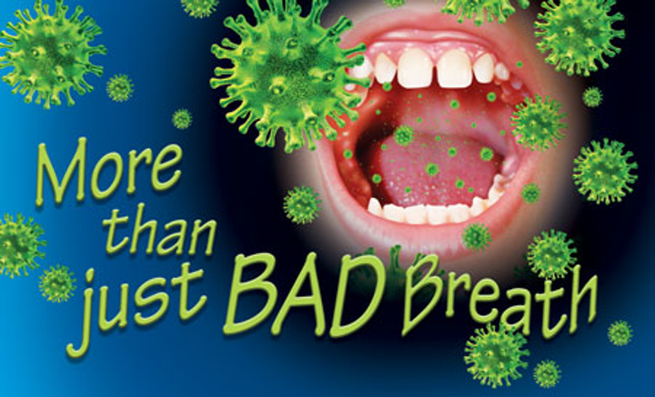 More than just bad Breath: Halitosis should be treated due to its impact on  overall health | Registered Dental Hygienist (RDH) Magazine