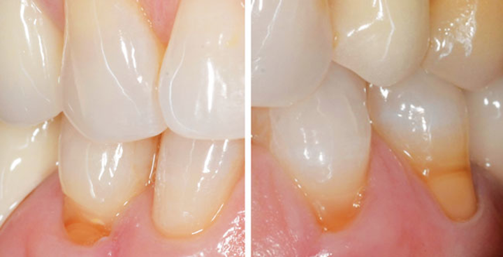 Disappearing tooth structure: What's a clinician to do about