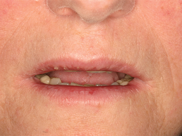 Exfoliative cheilitis and lip damage | Registered Dental
