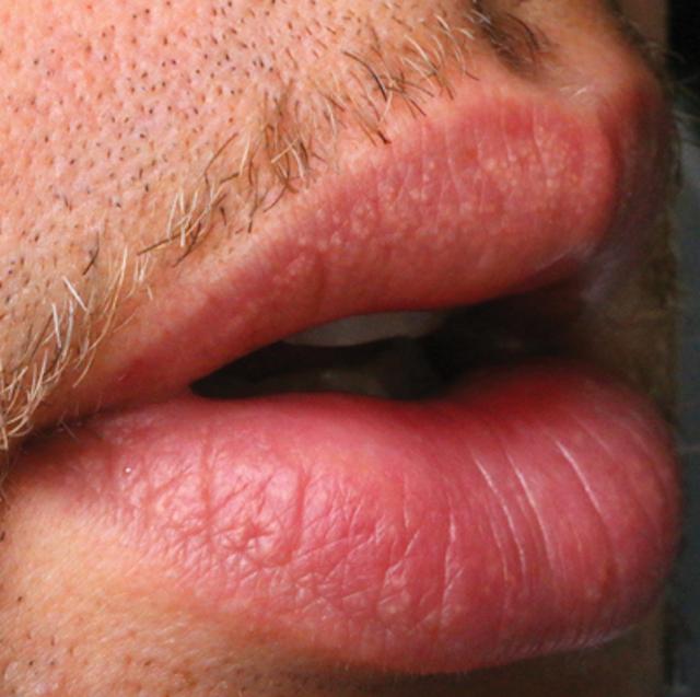 Fordyce granules: Normal or abnormal structures?   Registered Dental