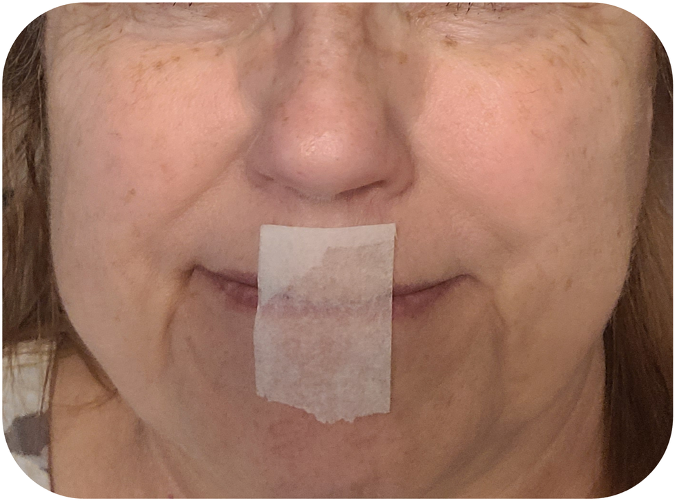 Figure 2: To practice mouth taping for sleep, fold the end of the tape over 2 to 3 mm (top). Then either tape from philtrum to chin (middle), or commisure to commisure (bottom). One-inch paper tape shown.